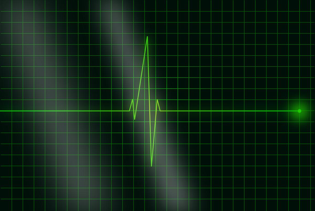 Pulsuhr Test – auf was achten beim Kauf?